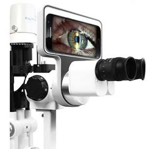 Адаптор, превращающий щелевую лампу в специализированный цифровой фотоаппарат RayVision Phonto