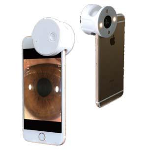 Visuscience QuikVue Уникальная насадка на камеру смартфона для изучения состояния поверхности глаза