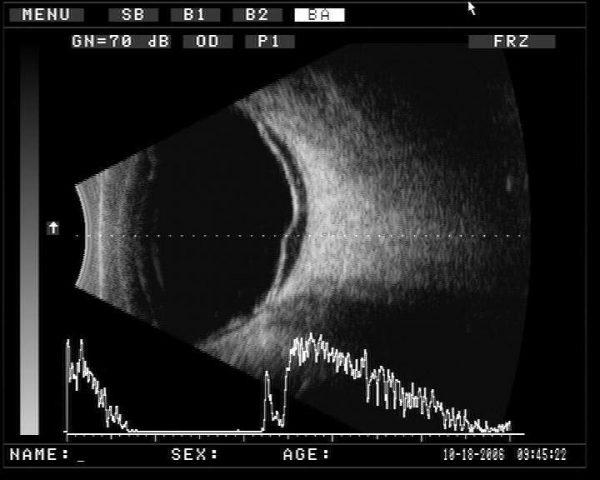 Ультразвуковой A/B сканер MEDA ODM-2200